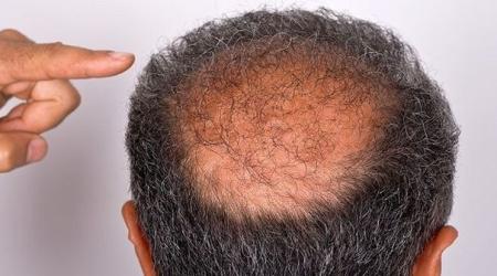 Fethiye Saç Simülasyon