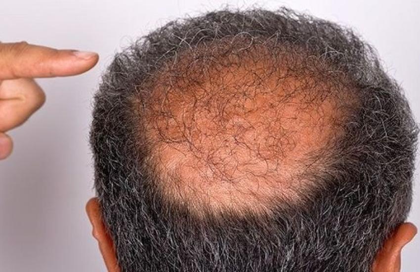 Saç Simülasyon